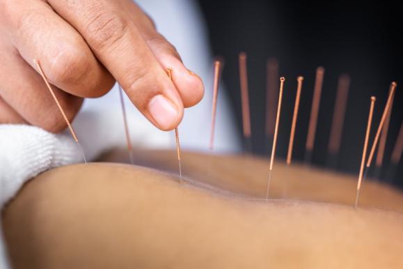 technique médecine chinoise